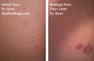 Bedbug Bites on Rose