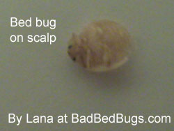 Bed bugs found on scalp
