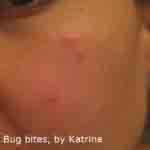Bug bites by Katrina 4