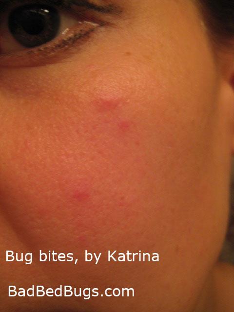 Katrina was bitten by a bed bug under her eye