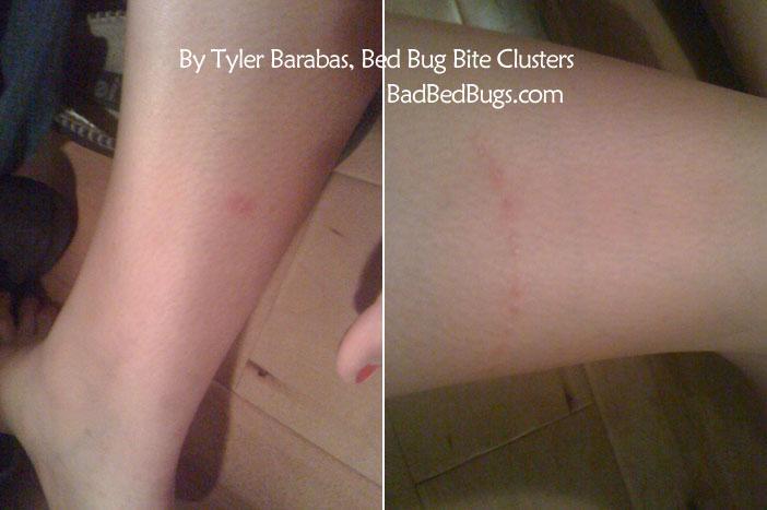 Bon Bed Bug Bite Clusters ...