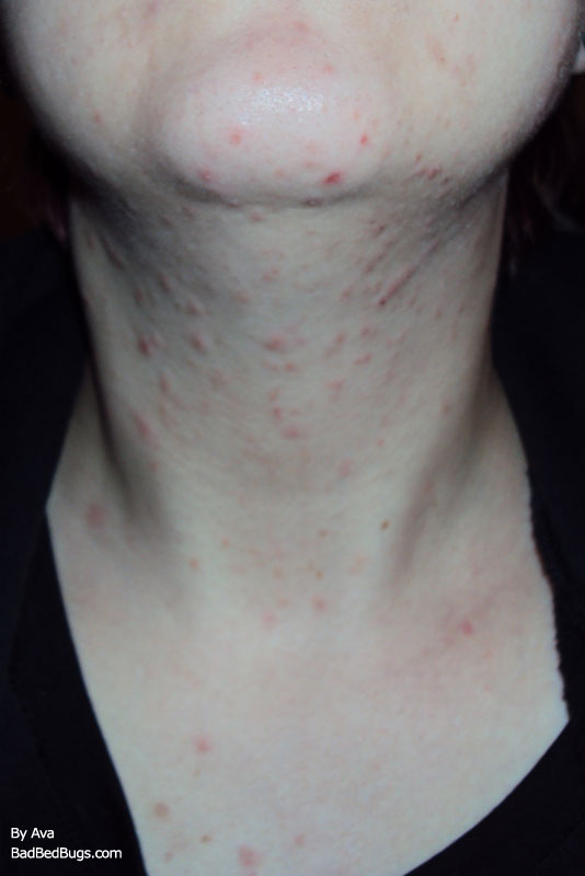 A Picture Of Bed Bug Bites On Ava S Neck And Face That Look Like Mite