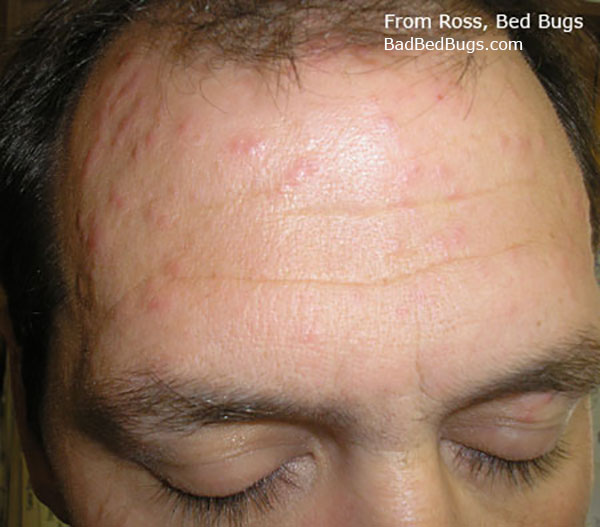 Bed bed bug bites on the forehead of Ross