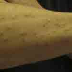 Bed bugs did this to Ross' arm