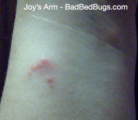 Image Of Bedbug Bite On Joyu0027s Wrist
