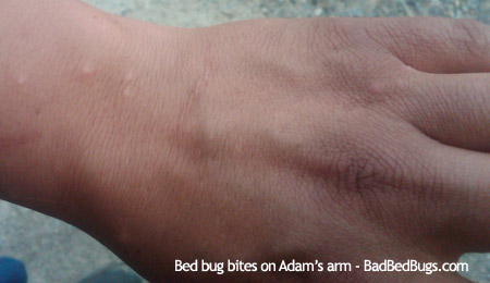 Bed Bug Wings Discussion 5