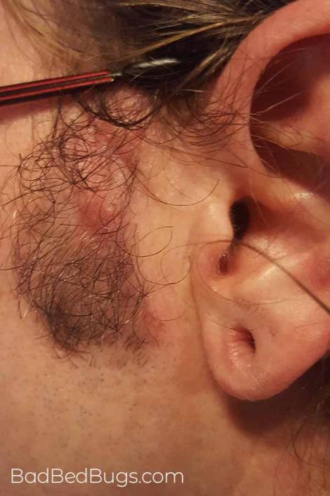 Bed bugs bit mel's face near his ear