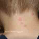 Bed bug bites on neck of child