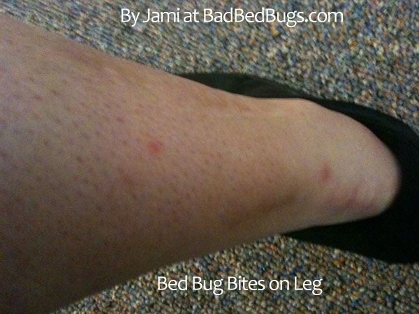 Check Your Hotel Apartment For Complaints Of Bed Bugs Pg2