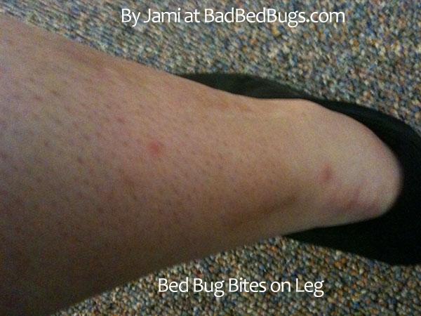 Bed Bug Complaint Registry pg2