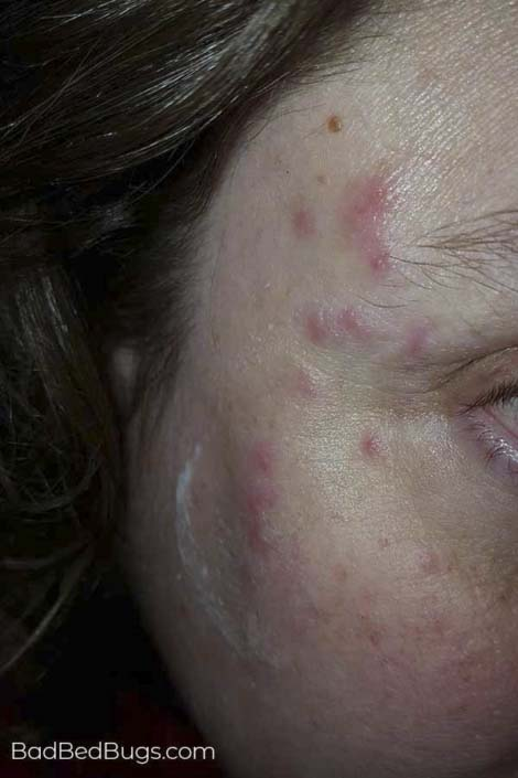 Bed bug bites on Lauras Face