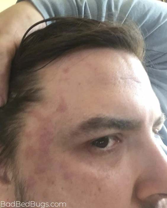 Bed bug bites on mans forehead and face