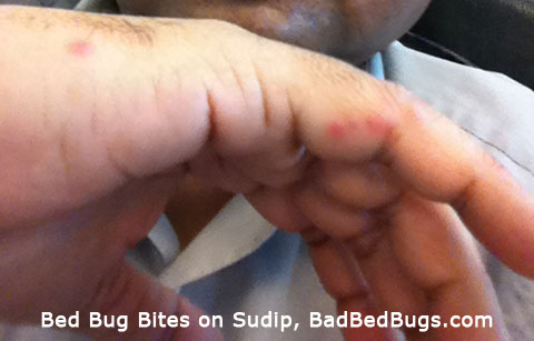 Check Your Apartment Complex For Bed Bug Complaints Pg4