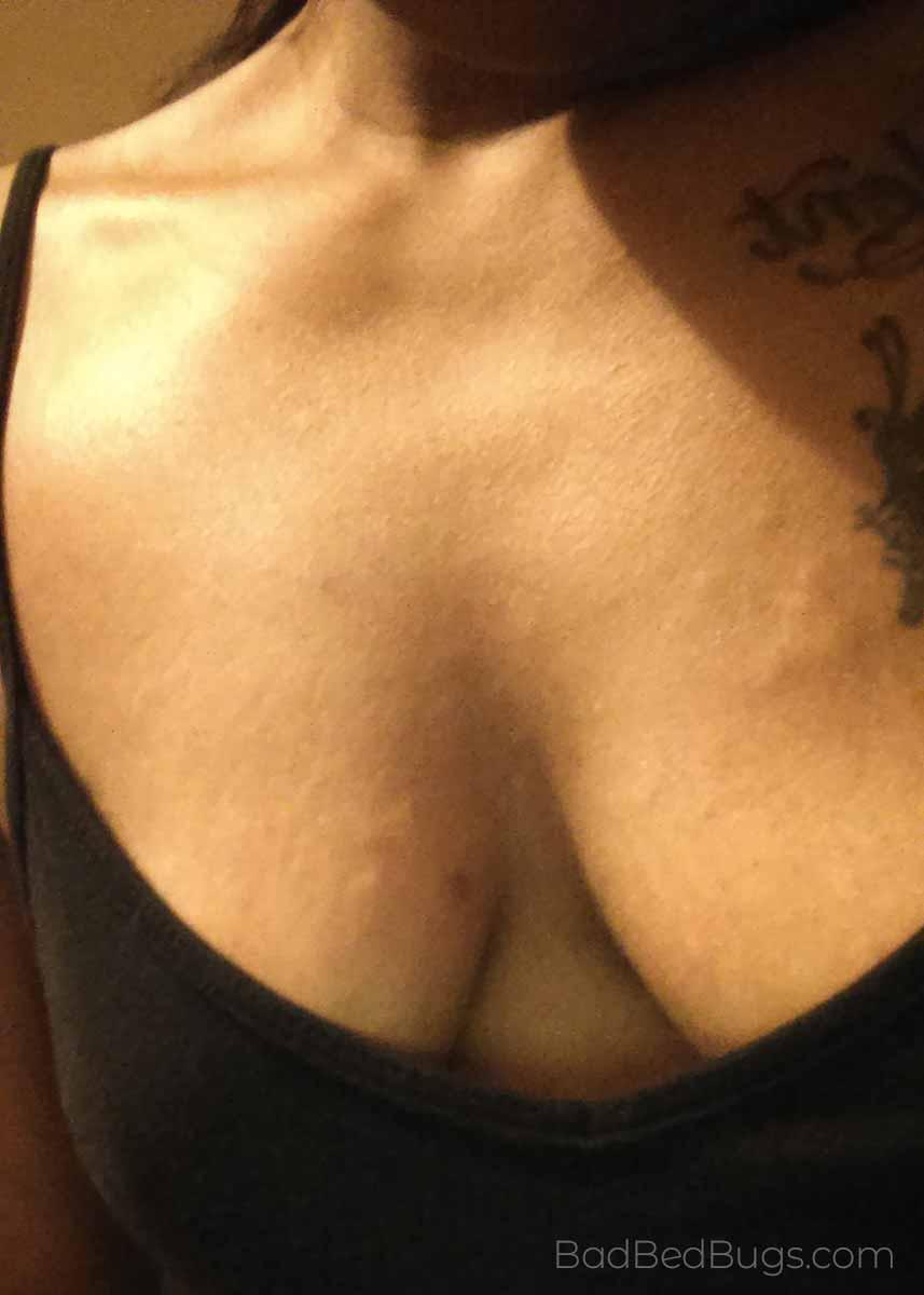 Bedbug bites on womans chest
