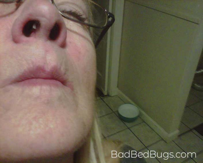 Bed bug inside nose
