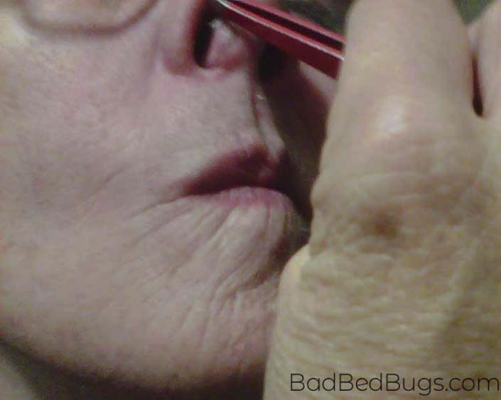Pulling a biting bed bug out of nose with tweezers