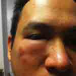 bitten near eye from bed bugs after staying at resort