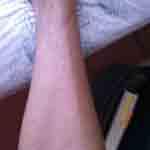 Bites on Annies Leg