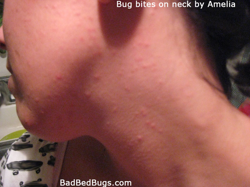 Bed bug bites on female face and neck