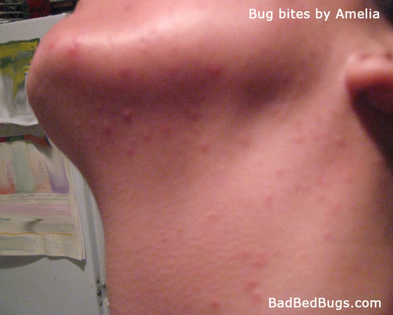 bedbug bites on womans neck and face