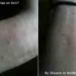Bed bug bites on Shawnas wrist