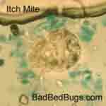 Image of an Itch Mite