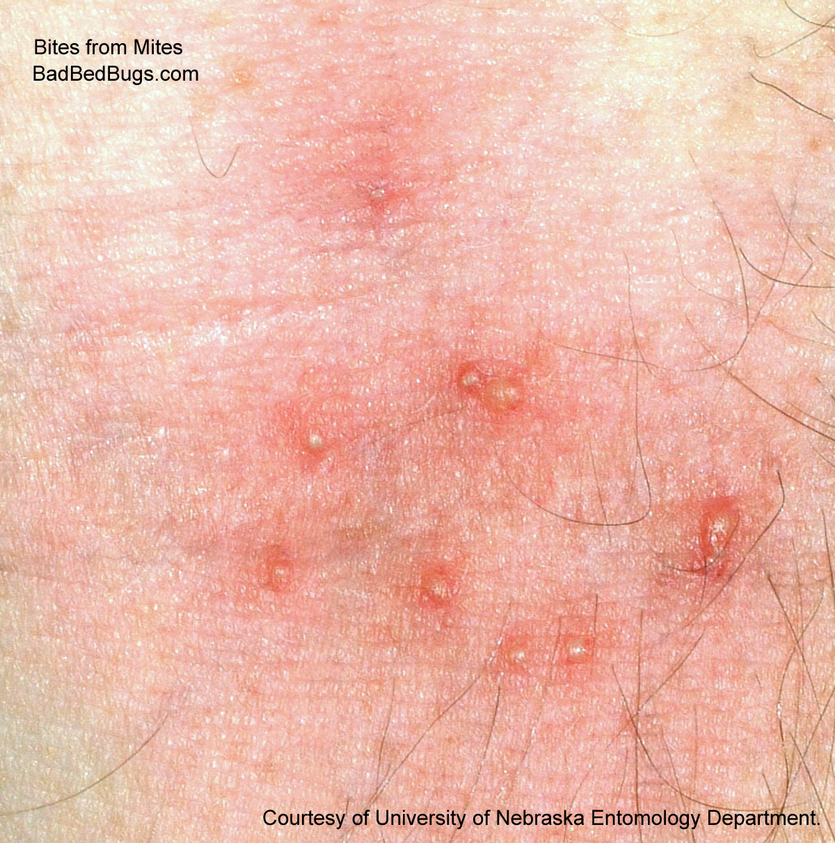 the scabies mite bite is often confused with a bed bug bite and can
