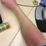Two bedbug bites on arm